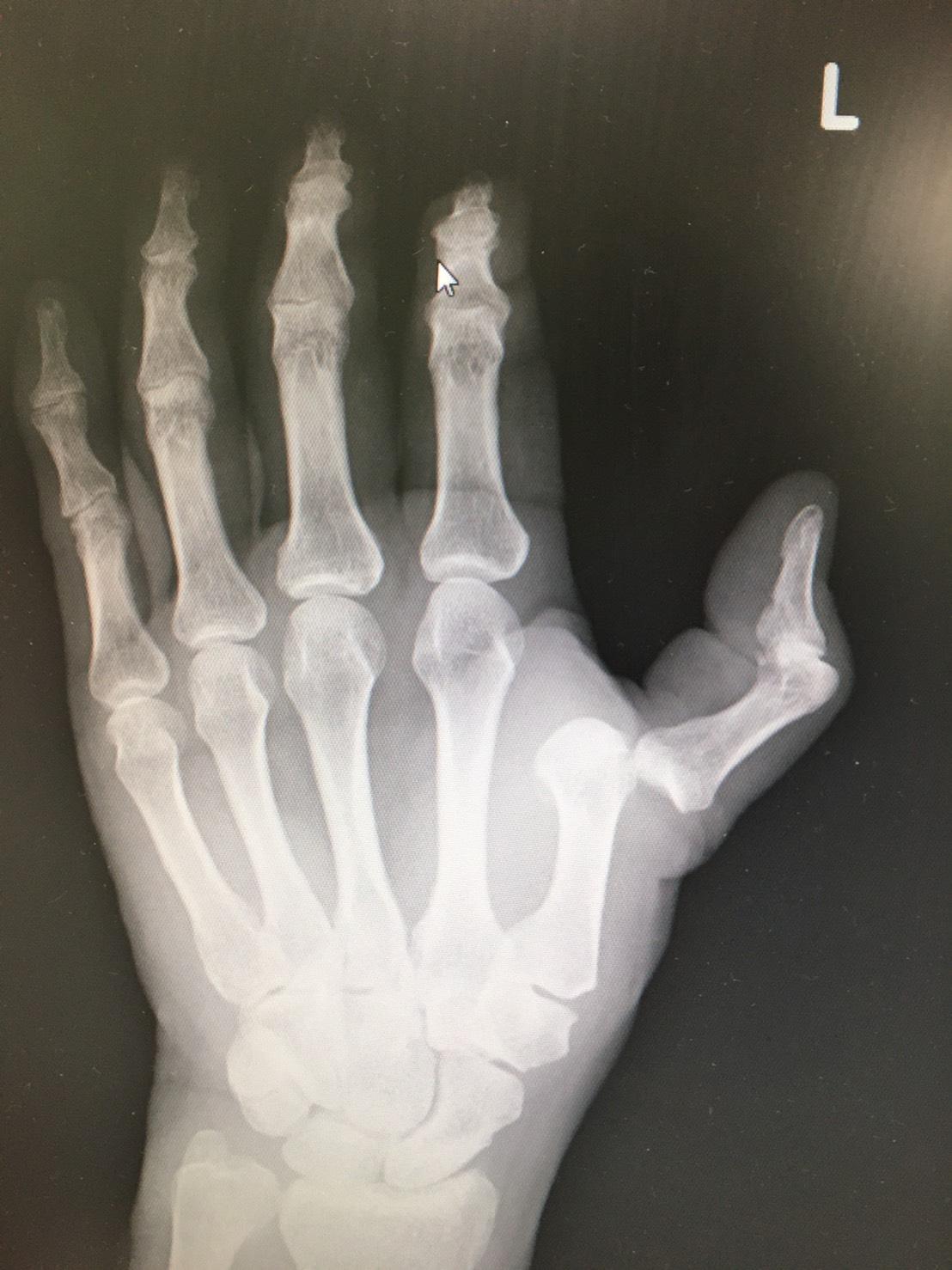 左親指の脱臼